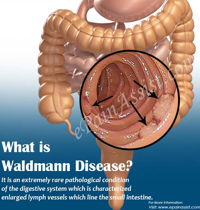 What is Waldmann Disease?