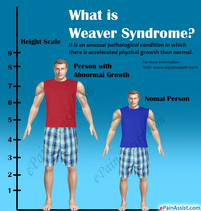 Weaver Syndrome ndash defenderauto info