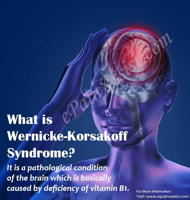 What is Wernicke-Korsakoff Syndrome?