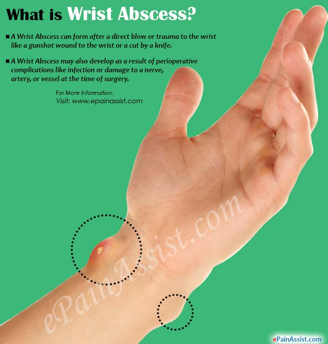 What is Wrist Abscess