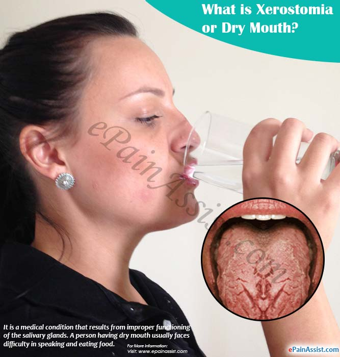 What is Xerostomia or Dry Mouth?