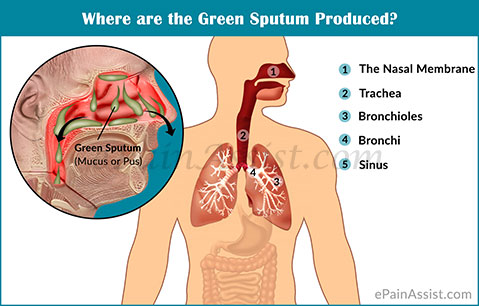 Where are the Green Sputum Produced?