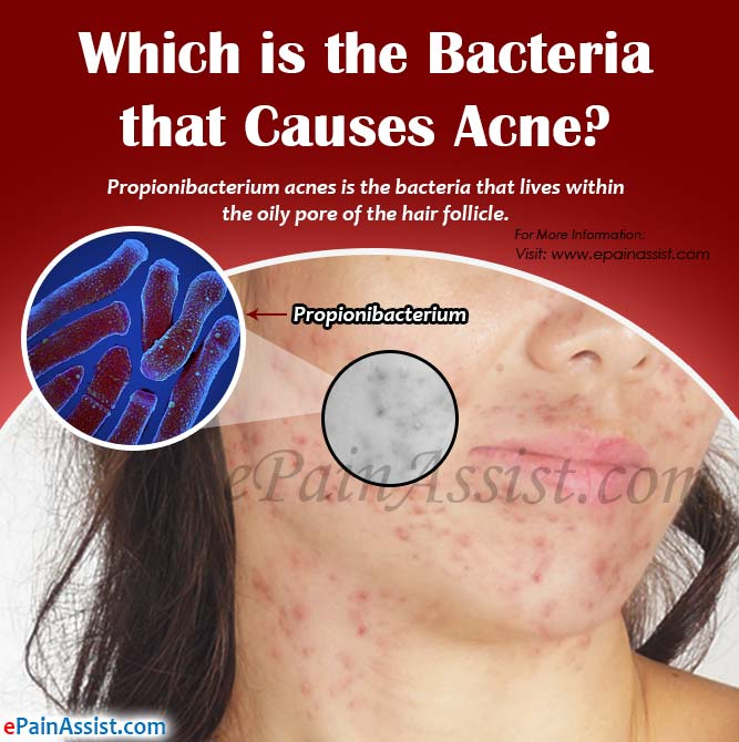 Which is the Bacteria that Causes Acne?