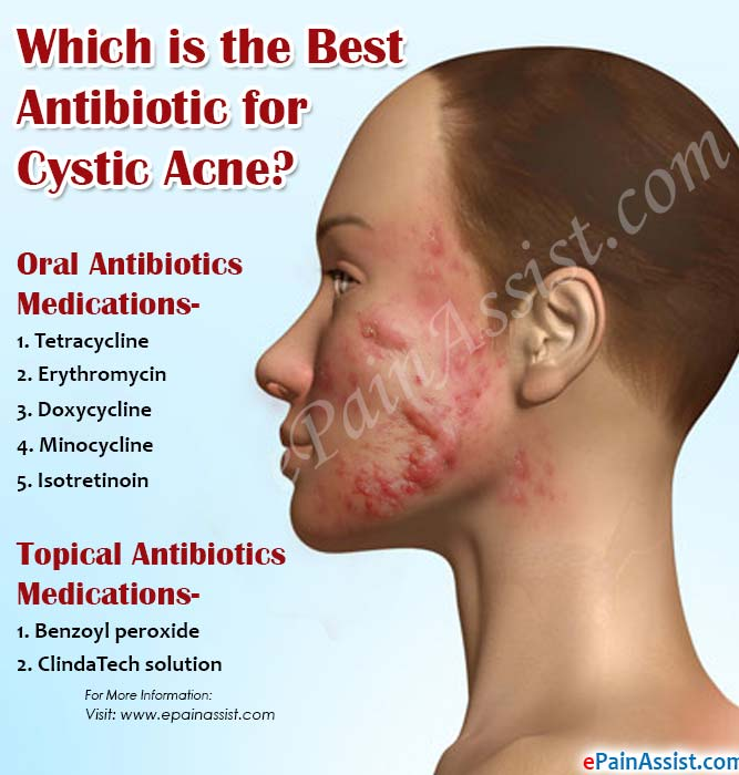 Which is the Best Antibiotic for Cystic Acne?