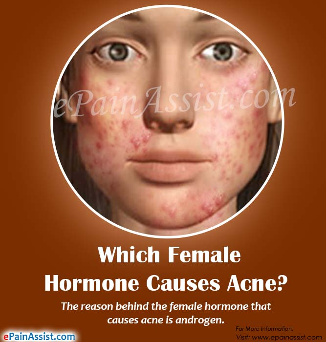 Which Female Hormone Causes Acne?