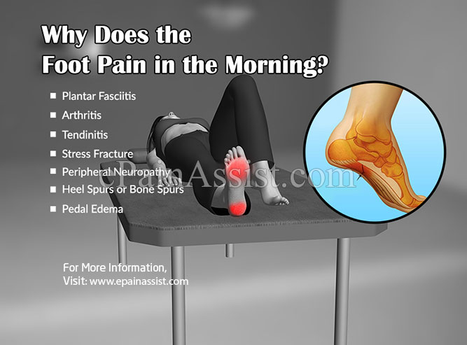 Why Does the Foot Pain in the Morning?