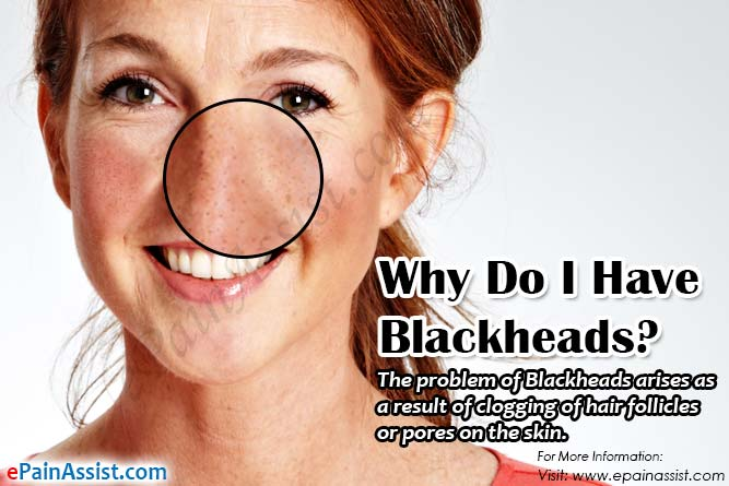 Why Do I Have Blackheads?