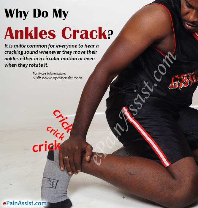 Why Do My Ankles Crack?