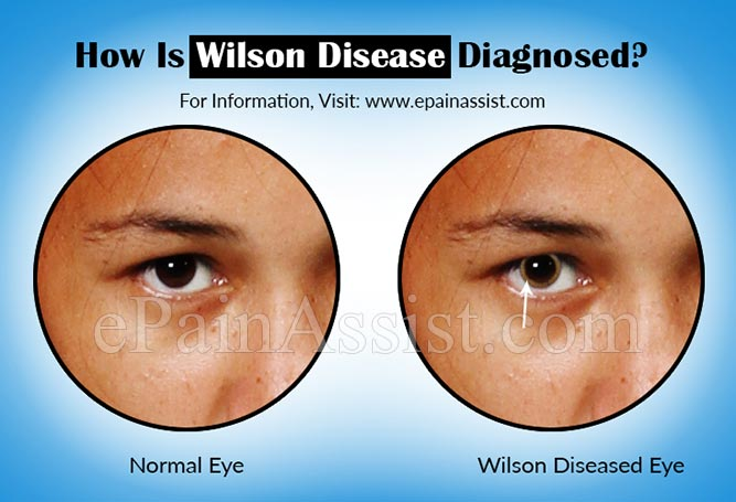 How Is Wilson Disease Or Hepatolenticular Degeneration Diagnosed?