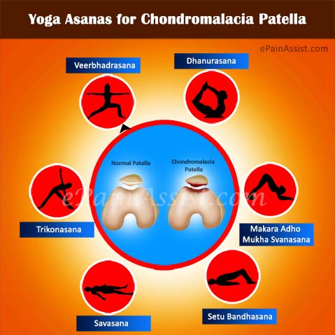 Yoga Poses / Asanas for Chondromalacia Patella (CMP)