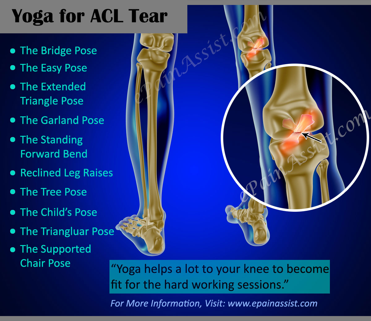 ACL Tear|Exercises|Yoga|Braces|Prognosis|Recovery|Prevention