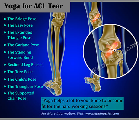 Yoga for ACL Tear